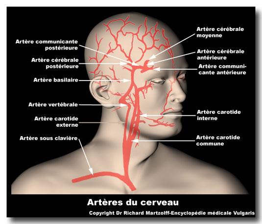 cerveauartere535b2c86.jpg